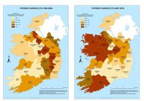 Thyroid 1994-2006 & 2007-2016 annual average